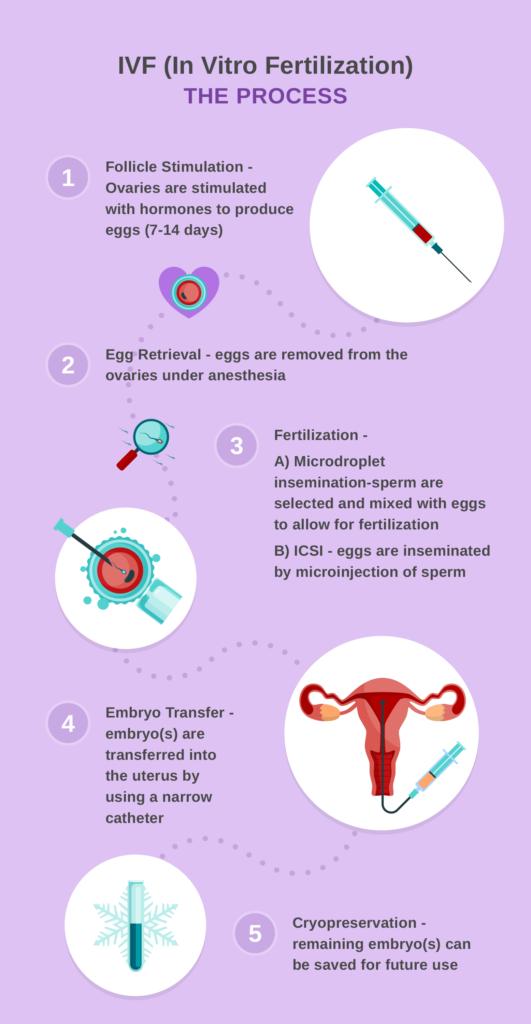 Sperm retrieval in vitro fertilization